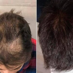 Where Buy Folital Stop Hair Loss?