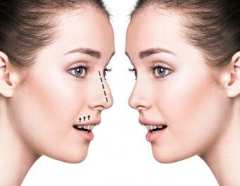 Useful Cosmetic Surgery Tips, Tricks, And Advice